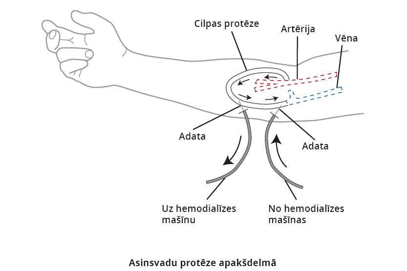Hemodialīze: asinsvadu protēze apakšdelmā
