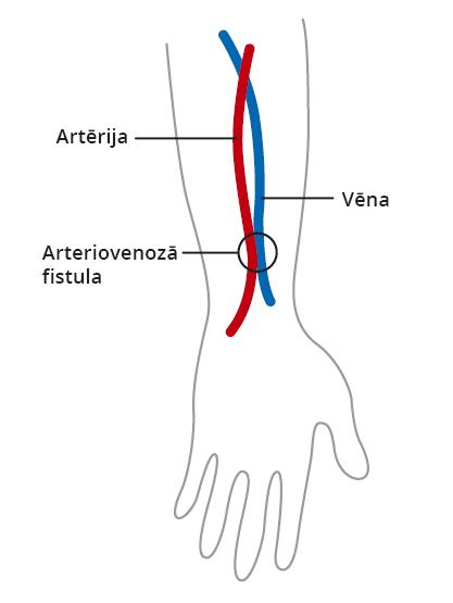 Hemodialīze: asinsvadu pieeja