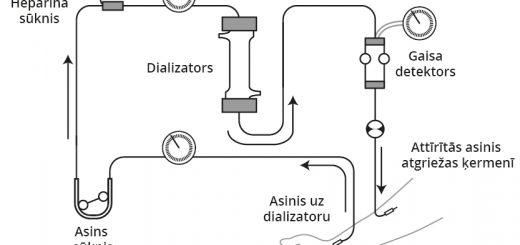 Hemodialīze