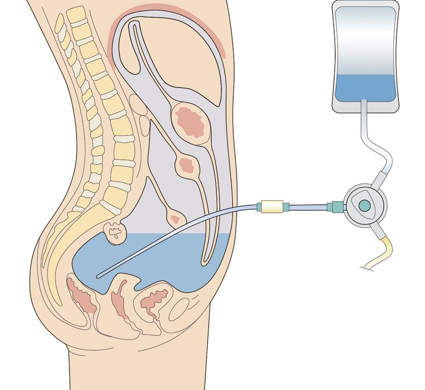 Peritoneālā dialīze