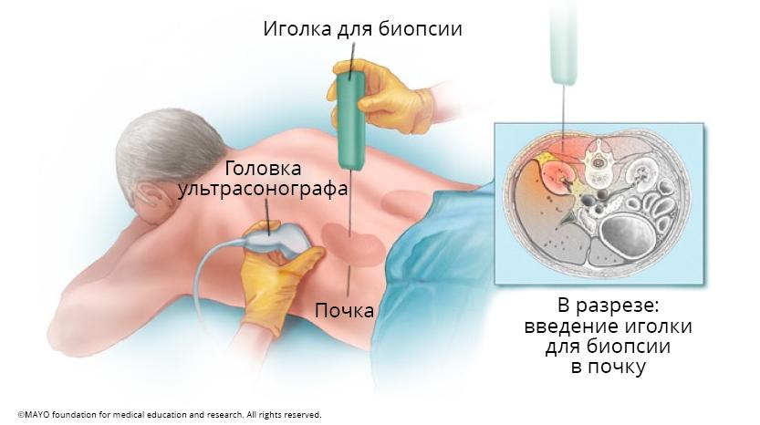 biopsija